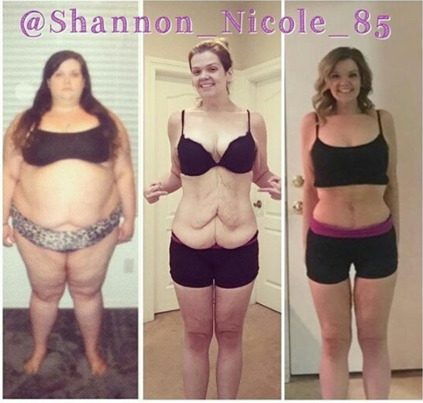Weight loss Shannon Nicole