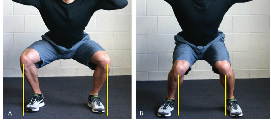 mistakes when doing squats