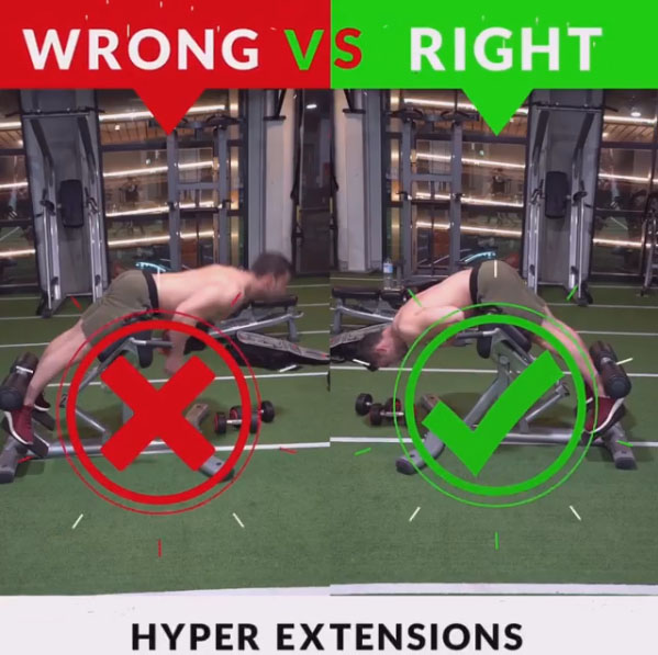 HOW TO HYPER EXTENSIONS WRONG