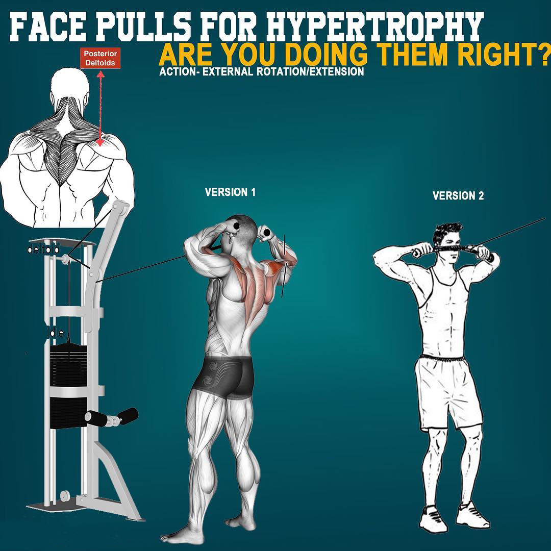 FACE-PULLS FOR HYPERTORPY