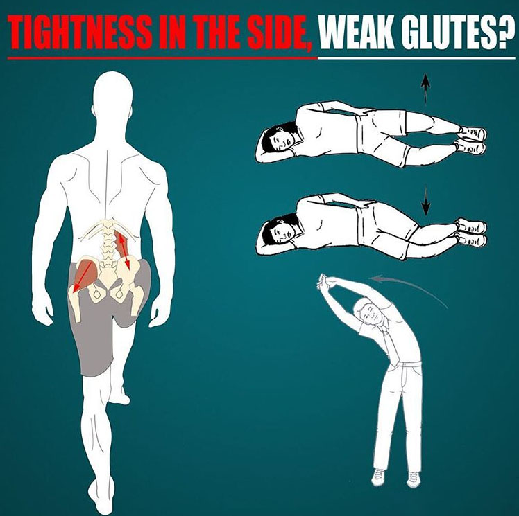 TIGHTNESS IN THE SIDE, WEAK GLUTE MED?