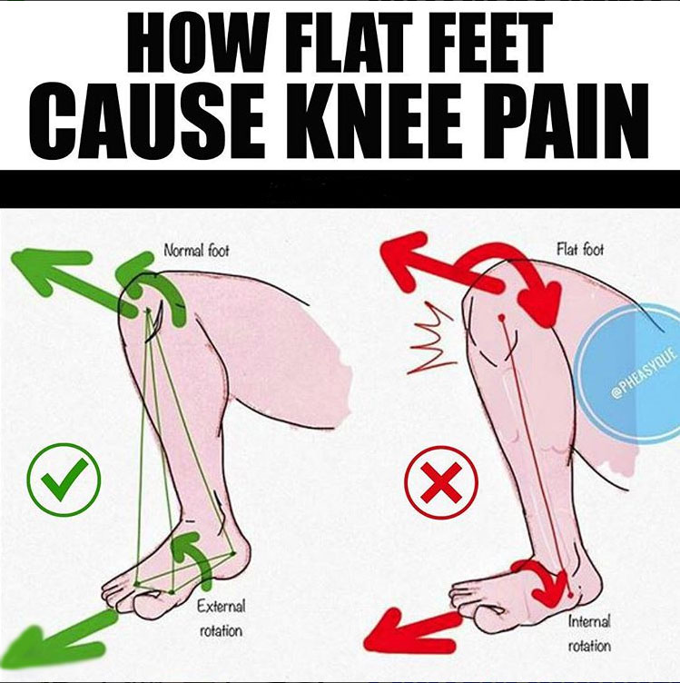 🔥HOW FLAT FEET CAUSE KNEE PAIN