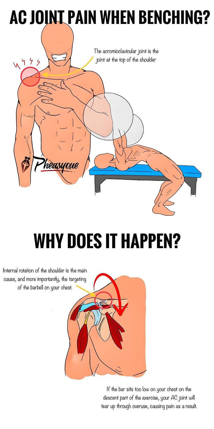 AC JOINT PAIN WHEN BENCHING