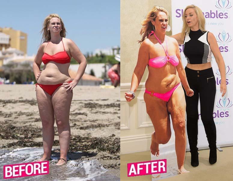 Josie Gibson Weight Loss Story